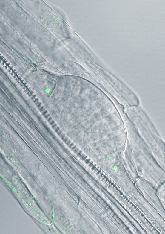 Image: A developing lateral root primordium before emergence from the parental root tissue. Credit: Fernández-Marcos et al. (2016).